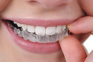 Clear Aligners, Invisible Braces |Invisible Aligners Treatment Cost