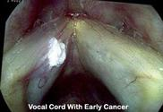 Voice and Swallowing Disorders surgery | Calwest Surgical Institute