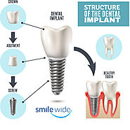 Dental Implant by Best Dentist in Mohali
