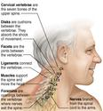 Causes And Treatments Of Neck Muscle Pain And Pain In The Top Of The Wrist