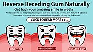 How To Reverse Receding Gums At Home?