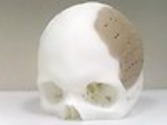 Patient has 75 per cent of his skull replaced by 3D-printed implant | Information, Gadgets, Mobile Phones News & ...