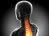 What is Whiplash? Whiplash Injury, St. Louis Whiplash