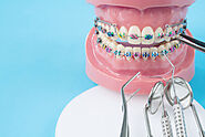 The Do's and Don'ts For Caring For Your Braces | i.Dental