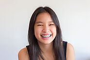Braces in Singapore: Prices and Student Packages | i.Dental