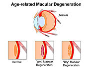 Is Macular Degeneration Hereditary? Know It Today | Health Clubfinder
