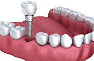 Know How Dental Implants Surgery Proceed