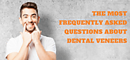 The Most Frequently Asked Questions About Dental Veneers