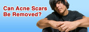 Can Acne Scars Be Removed?