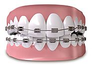 Overview of Typical Orthodontics Treatment