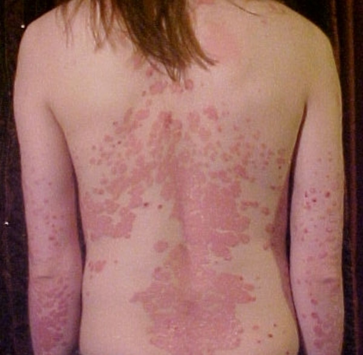Headline for 10 Interesting and Helpful Facts About Psoriasis