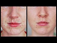 Freckles Be Gone! - My Laser Experience