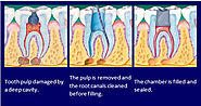 Root canal Treatment in Noida - Dr. Rajesh Agarwal
