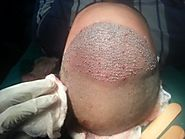 Hair Transplant in Noida, Hair Transplant Clinic Noida