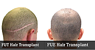 Comparison of FUE and FUT Procedures