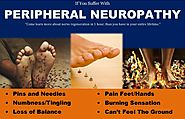 What is Peripheral Neuropathy? Classification & Differential Diagnosis -