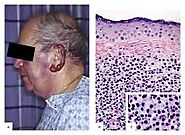 Waldenström's macroglobulinemia: a bone marrow issue
