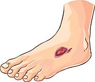 Causes And Treatment Options For Diabetic Foot Ulcer