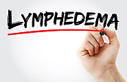 Lymphedema Assessment Methods - Some Considerations