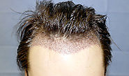 Benefits of Follicular Unit Extraction- Rejuvenate Hair Clinics
