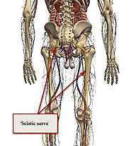 Sciatica Treatment And Exercises By KHANH TRINH