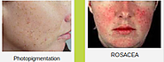 Turn To Laser For Rosacea Treatment