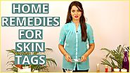 3 Best Home Remedies To REMOVE SKIN TAGS AT HOME