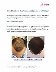 How Effective is Hair Transplant Treatment in Udaipur