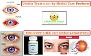 Uveitis Natural Remedies | Symptoms Causes and Natural Home Treatment - Herbal Care Products