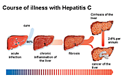 Know Different Stages of Hepatitis C...