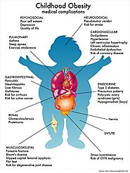 Obesity in Children – Causes & Prevention