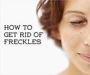 How to Get Rid of Freckles Using Home Remedies?