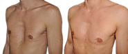 Pectus Excavatum is a Treatable Condition