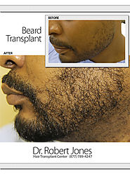 Dr. Robert Jones Hair Transplant Center Toronto