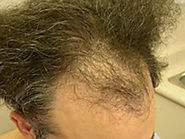 Hair restoration toronto reviews