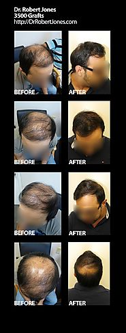 3500 Grafts to Restore the Crown of a Male