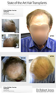Stress And Hair Loss - Dr.Robert Jones