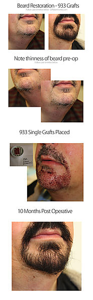 Beard transplants - Dr. Robert Jones