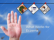 What work for eczema?