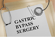5 Factors Doctors Consider Before Recommending Gastric Bypass Surgery