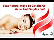 Best Natural Ways To Get Rid Of Acne And Pimples Fast