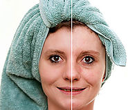 Website at http://www.skinspecialistinbangalore.in/skin-treatment/skin-rejuvenation-treatment-in-bangalore/