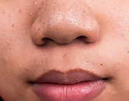 Blackhead Removal Treatment in Whitefield, Koramangala, Bangalore
