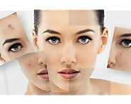 Advanced and Effective Acne Scar Removal Treatments