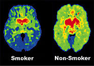 Smoking changes the brain.
