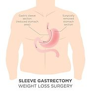 Get Gastric Sleeve Surgery in Perth by Dr. Ravi Rao