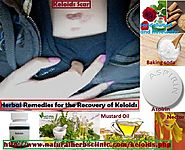 Keloids Skin Infection, Symptoms and Natural Herbal Remedies for Treatment