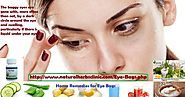 7 Home Remedies for Eye Bags