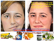 Bell's Palsy Natural Treatment