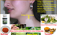 6 Natural Treatments for Vitiligo